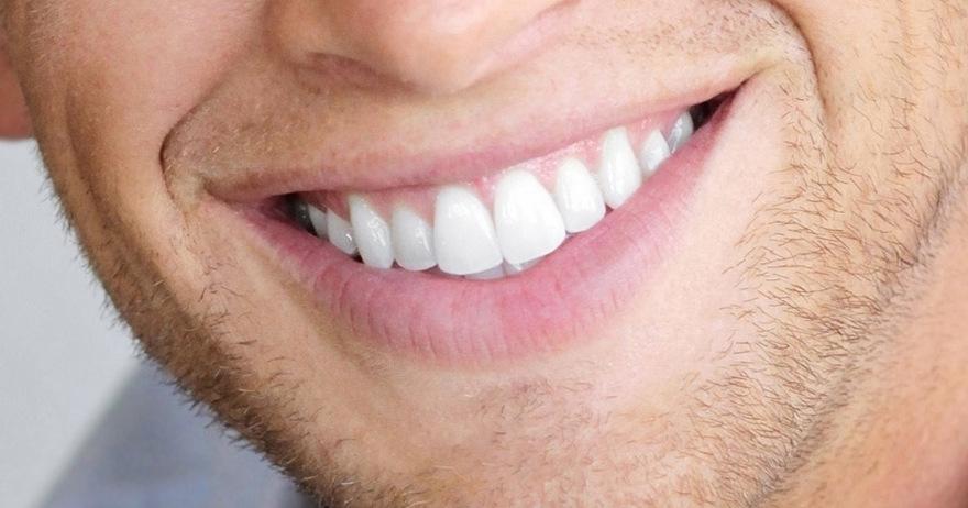 cuanto cuesta una limpieza dental profunda en colombia