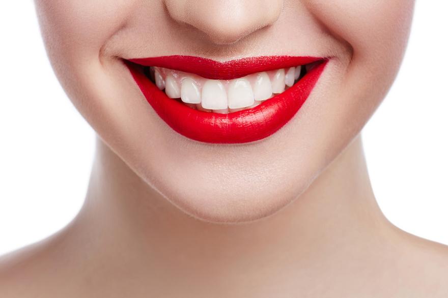 2 carillas de resina en dientes anteriores 35 dto santiago