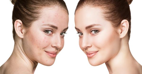 elimina las manchas y acn en rostro o espalda sede el retiro 84 dto bogot. Black Bedroom Furniture Sets. Home Design Ideas