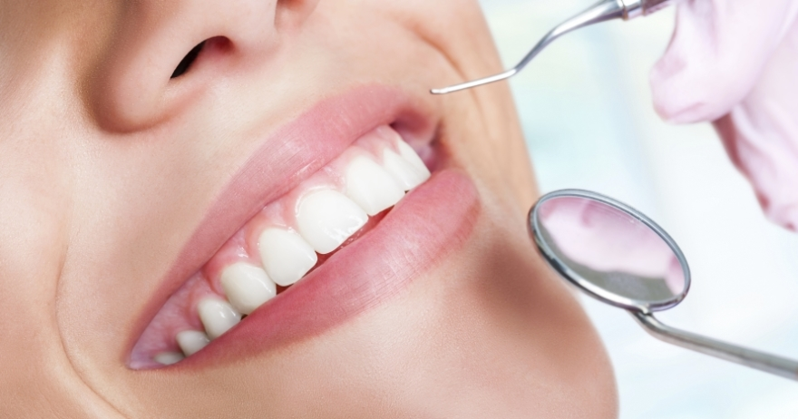 Blanqueamiento dental LED + higiene bucal